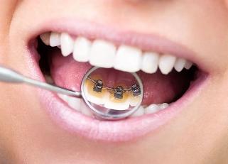 目立ちにくい矯正 | 奈良で矯正するなら 岡下矯正歯科